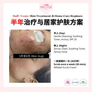 Half-Year Skin Treatment and Home Regimen �年治疗与居家护�方案